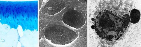 [von links nach rechts]: Gelenkknorpel auf subchondralem Knochen (Alcianblaufärbung); Knorpelzelllakunen mit umgebendem Kollagennetzwerk (REM);  apoptotischer Chondrozyt mit Kernblebbing (TEM)