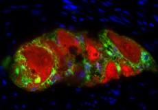 Fluoreszenz-Immunhistochemie von PGP9.5 (rot) und S100b (grün) in humanen Plexus myentericus des Colons